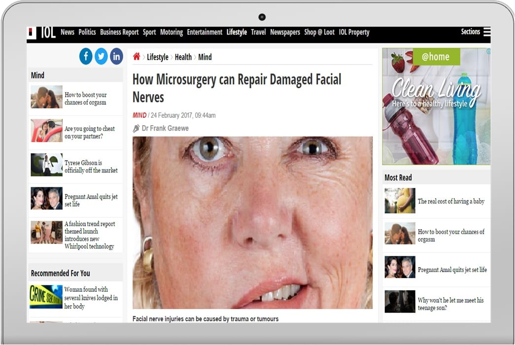 Repair damaged facial nerves are